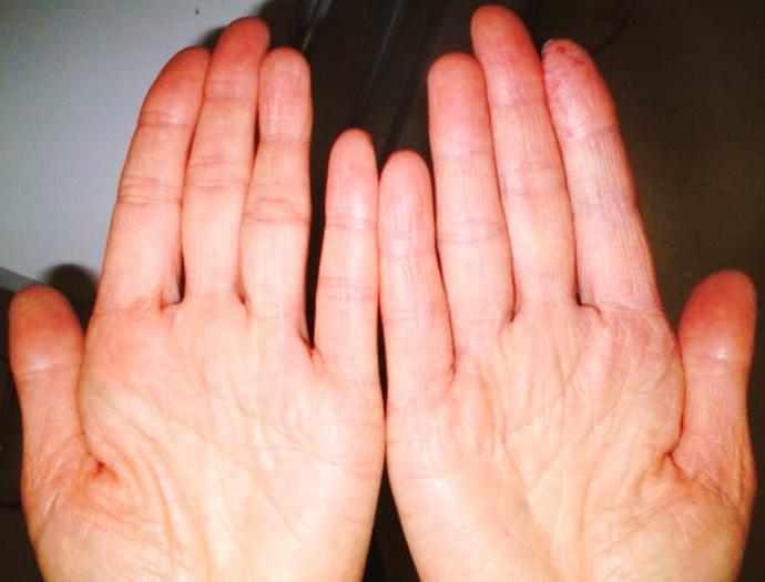 我慢できない手湿疹のかゆみをどうしても止めたい時 | 健康トピックス
