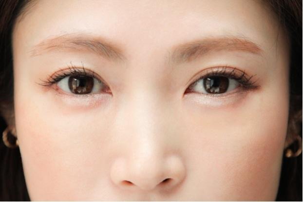 日本人なら美容外科は韓国よりも日本がオススメ | 美容トピックス