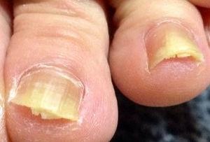 足の指だけじゃない、爪にもできる水虫