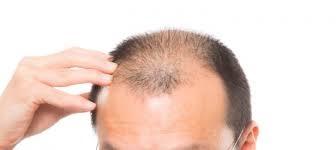 男のハゲと美容皮膚科 | 美容トピックス